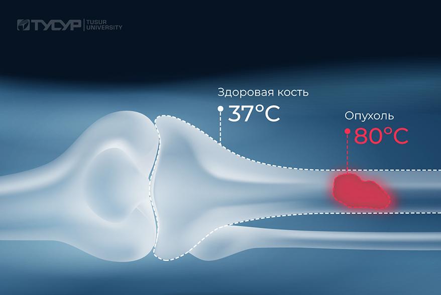 В ТУСУРе разрабатывают технологию лечения костных опухолей